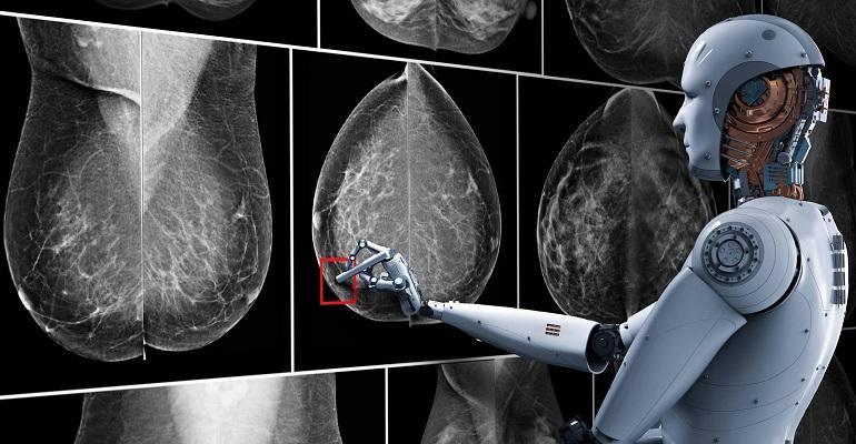 Breast-cancer-artificial-inteligence.jpg